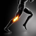 """La sindrome della bandelletta ileo-tibiale, conosciuta anche come """"ginocchio del corridore"""""""